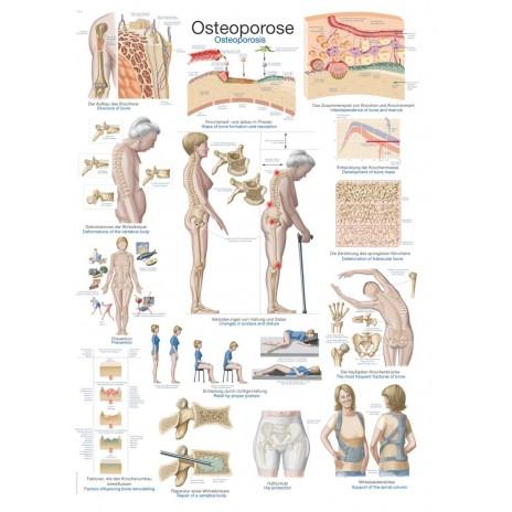 Osteoporoza - tablica anatomiczna