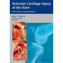 Articular Cartilage Injury of the Knee Basic Science to Surgical Repair